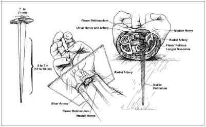 nail through wrist